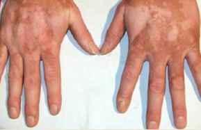 成人白癜风患者的症状及护理方式有哪些呢