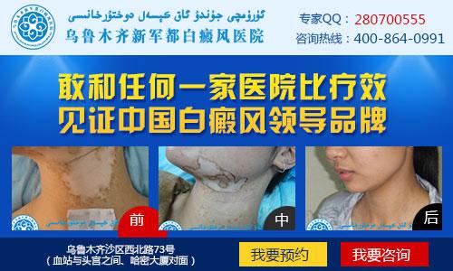 预防白癜风,保护皮肤健康